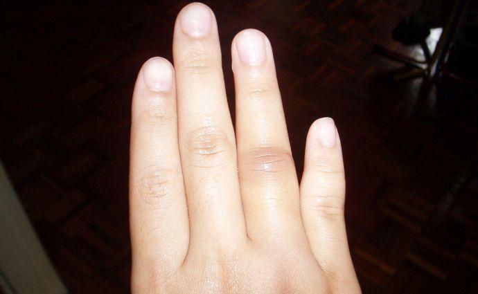 Wybity palec