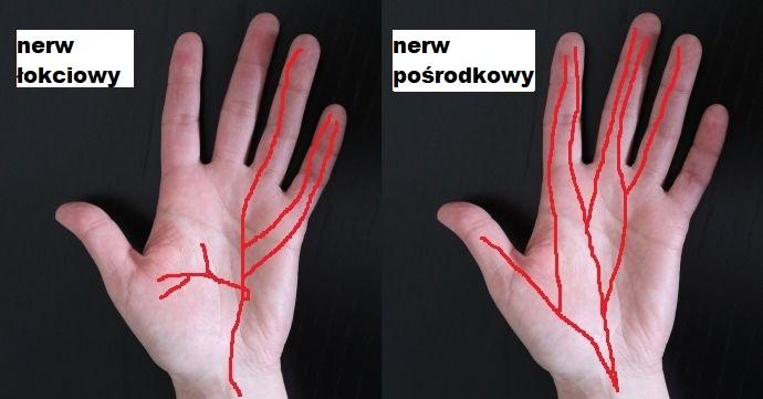 unerwienie dłoni